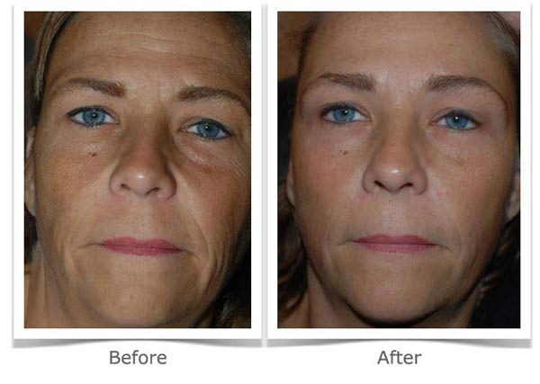 Buy Isagenix Rejuvity Ageless Renewal Anti Aging